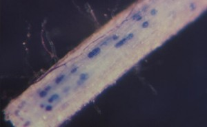 root with vesicles