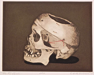 Van Hoesen skull