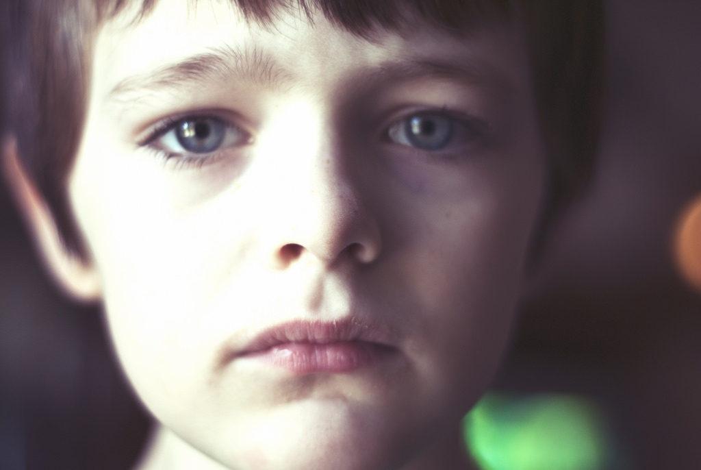 Patient with autism spectrum disorder